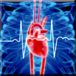 CoQ10 Shown to Improve Heart Failure Markers
