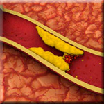 Vitamin E is also Shown to Lower Diabetes Risk