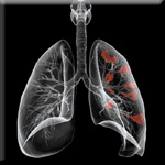 Lung Cancer is a Leading Cause of Cancer Deaths in the US